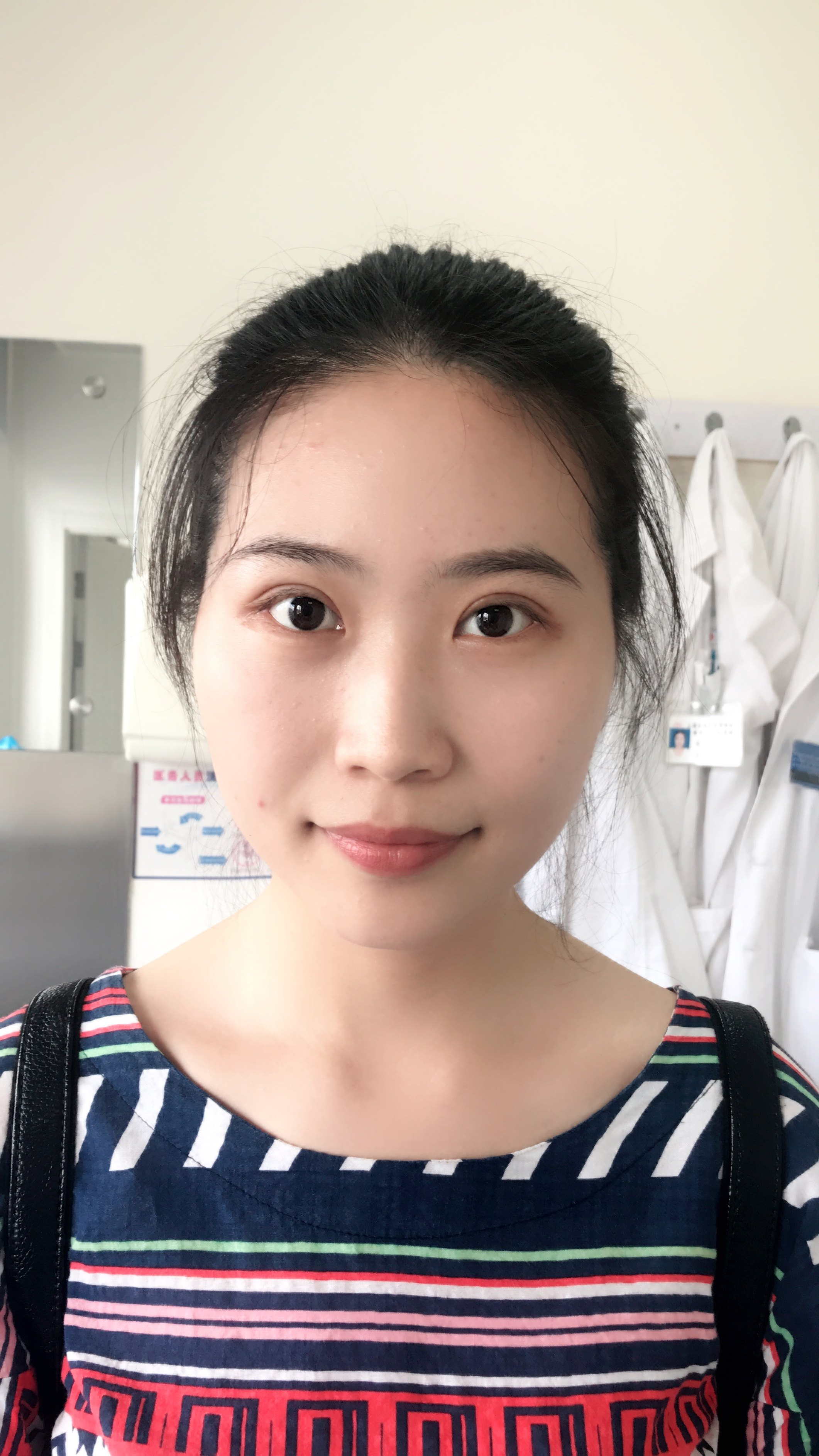 上海九院双眼皮案例