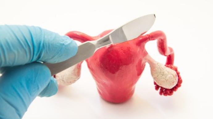 子宫内膜癌要切除子宫和卵巢吗?