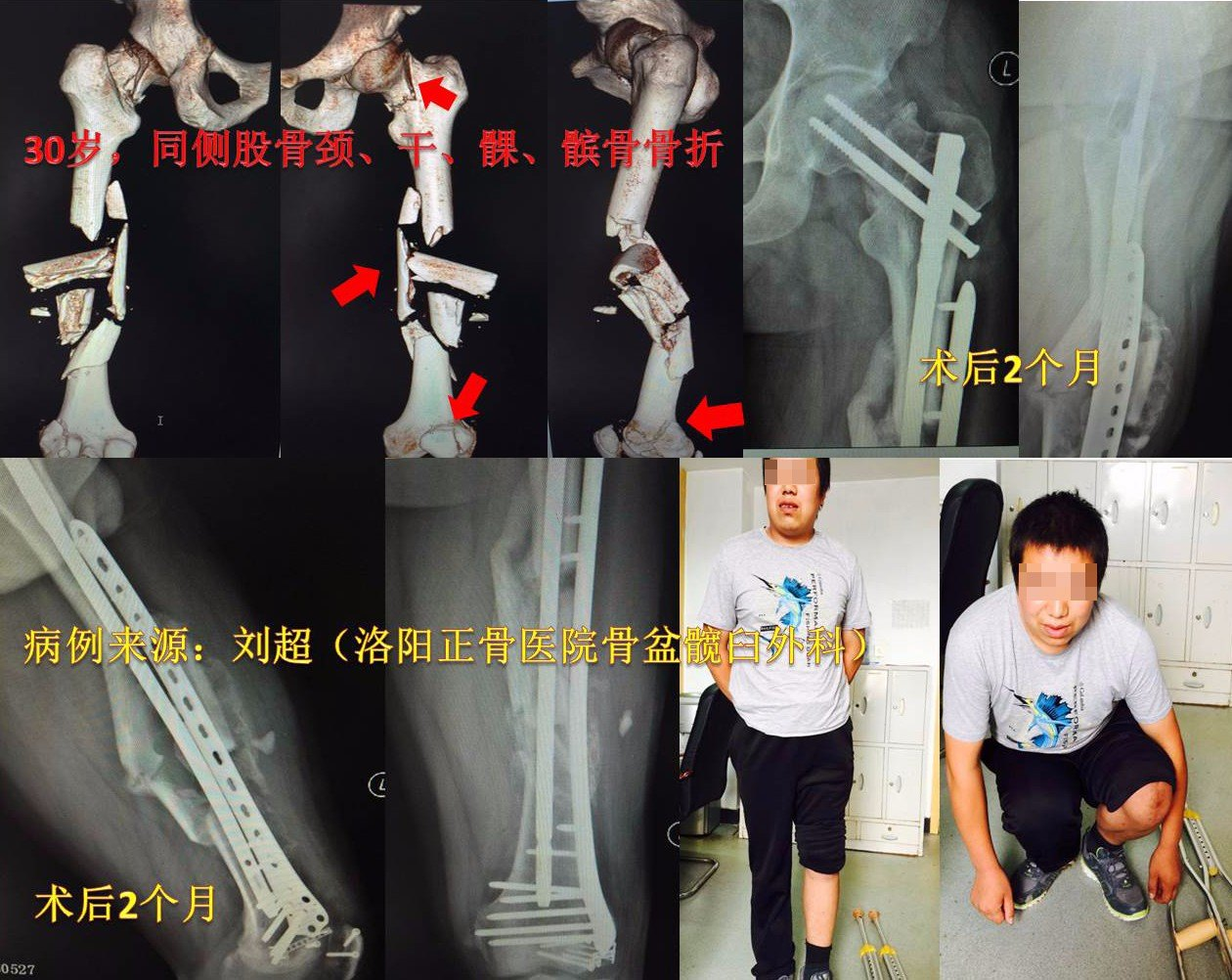 图15 男性,30岁,同侧股骨颈、干.jpg