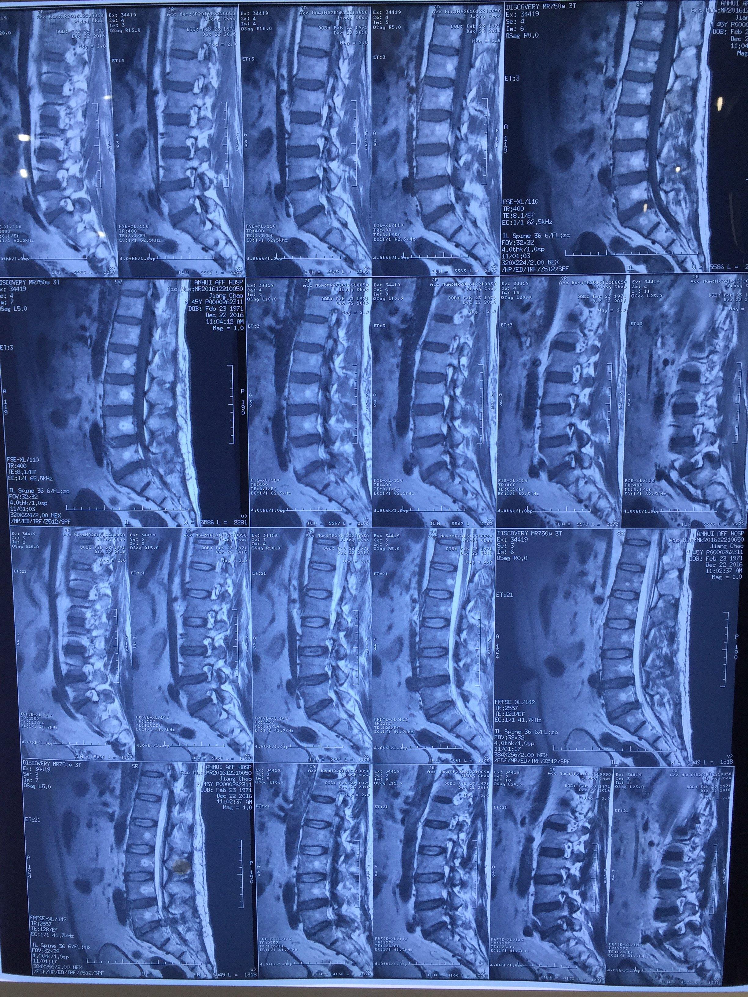 腰5骶1椎间盘突出