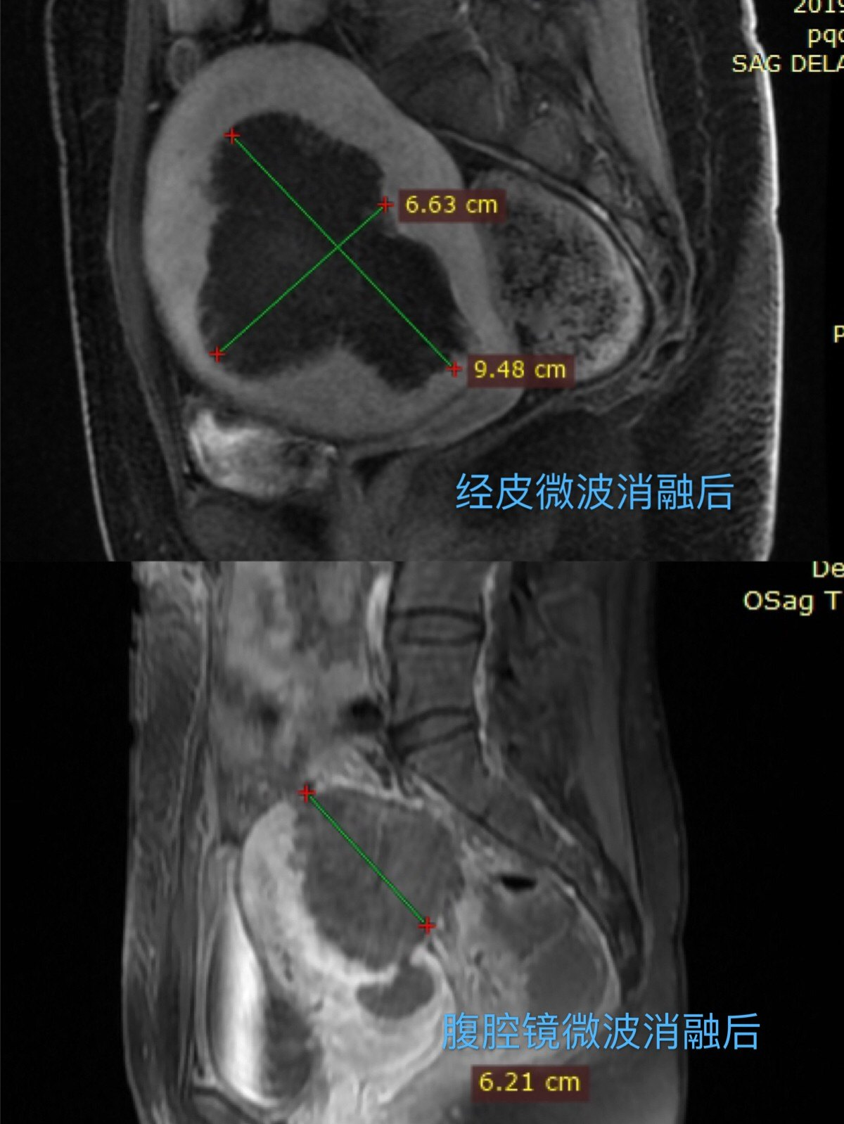 经皮消融和腹腔镜消融差异.jpg