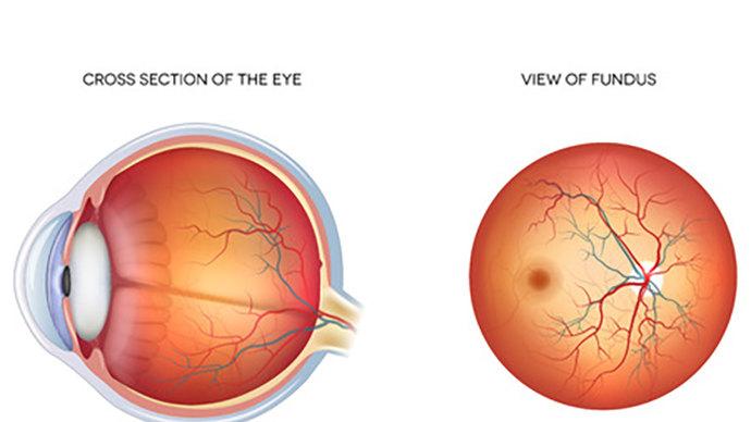 视网膜母细胞瘤的症状有哪些