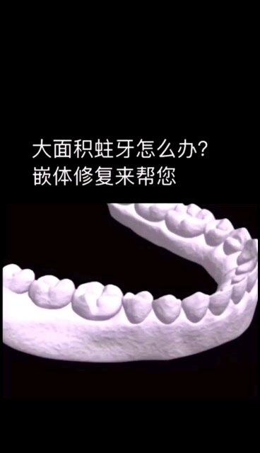 补牙有新方法啦
