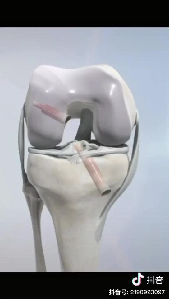 科普动画:膝关节前交叉韧带撕裂关节镜下重建