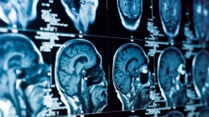 脑积水做了脑室腹腔分流手术后感染了怎么办?