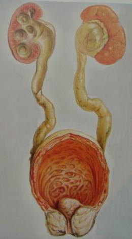 前列腺增生导致双肾积水