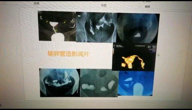 为什么说输卵管造影片子有的医生说通,有的医生说不通