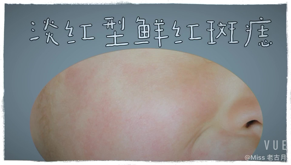 鲜红斑痣临床分型