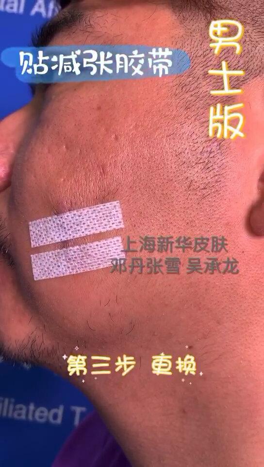 男士版的减张胶带怎么贴?还在为先贴美容胶带还是先涂祛疤药而纠结?二合一的硅酮胶带来啦!