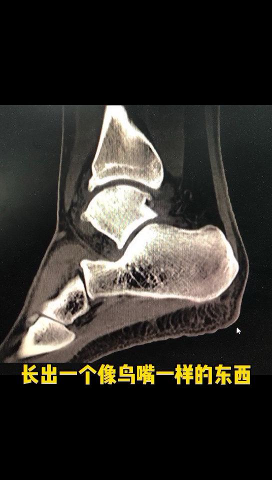 前踝关节撞击综合征