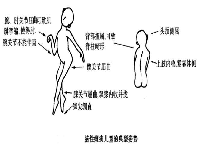 <!--HAODF:8:xiaoernaotan--><!--HAODF:8:xiaoernaotan-->脑瘫儿童<!--HAODF:/8:xiaoernaotan--><!--HAODF:/8:xiaoernaotan-->典型姿势图.png