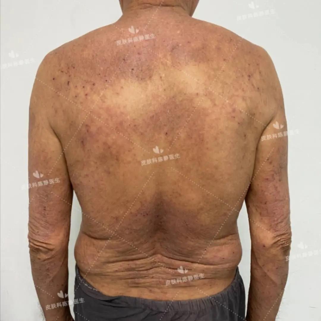 中重度特应性皮炎(湿疹)患者将迎来治愈的曙光