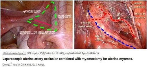 为什么子宫动脉阻断能够降低术后复发(机理)