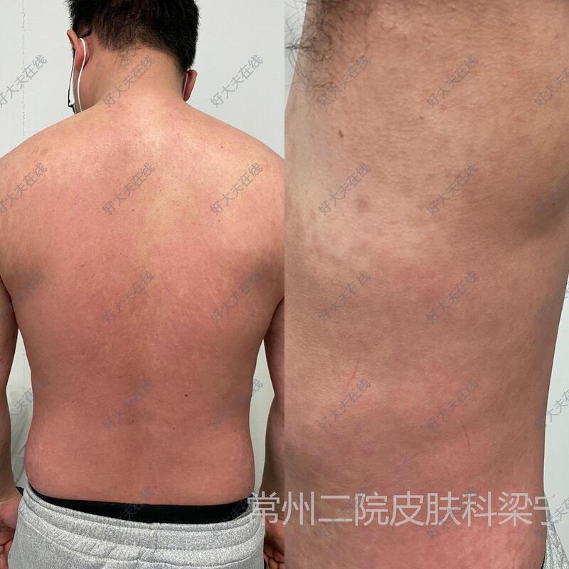 术后/治疗后第30天(约1月)