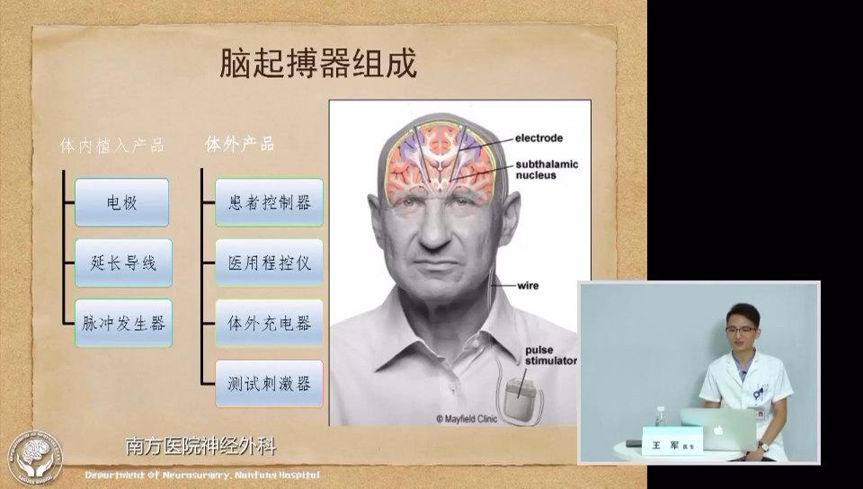 王军博士谈帕金森病的脑起搏器治疗5:DBS的组成有哪些?