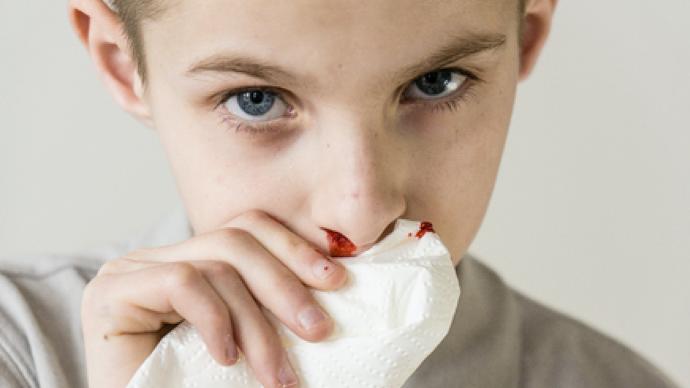 怎样判断宝宝流鼻血是不是白血病?