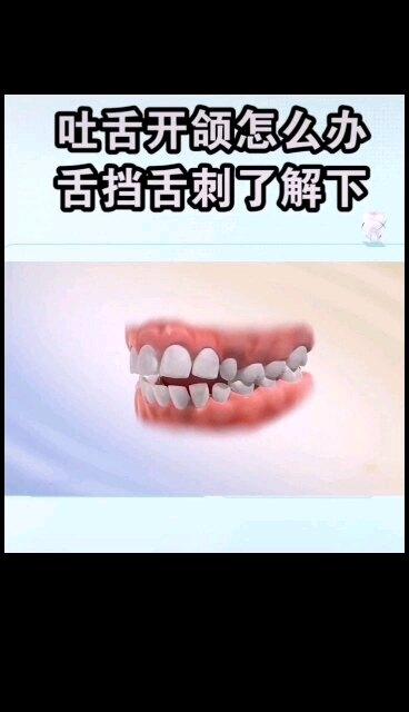 吐舌开颌怎么办?舌挡舌刺了解下!
