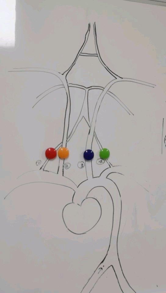 急性脑梗死最佳的治疗方案--静脉溶栓与机械取栓!