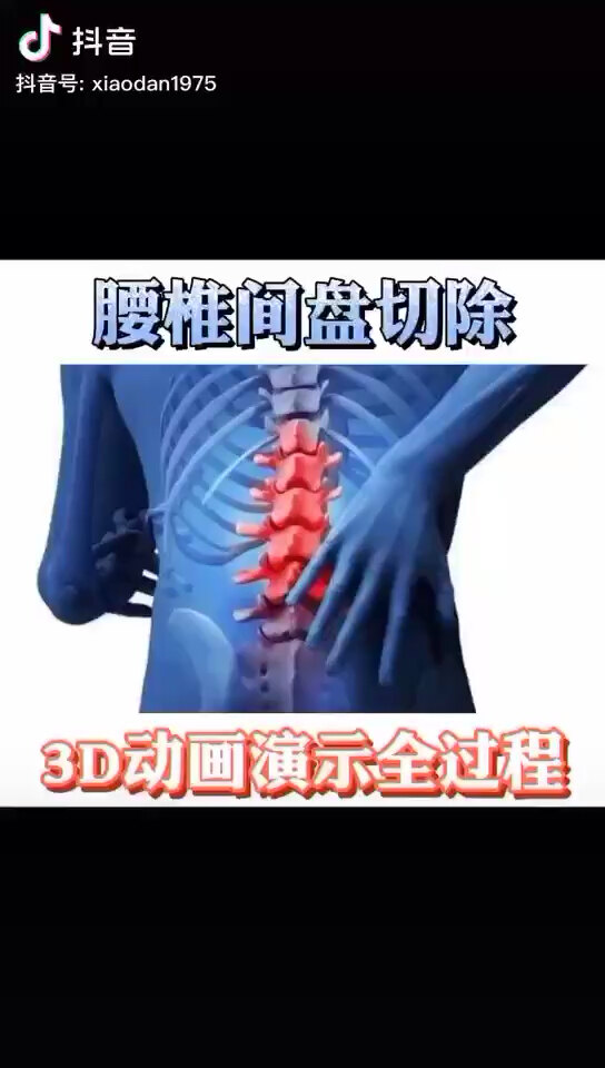 腰椎间盘突出切除手术3D动画演示全过程