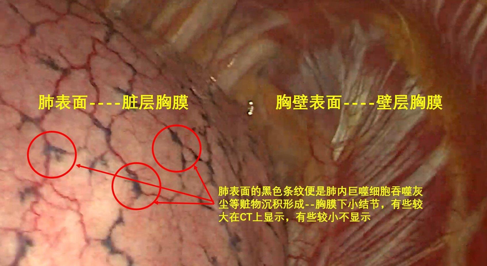 胸膜下結節解1.jpg
