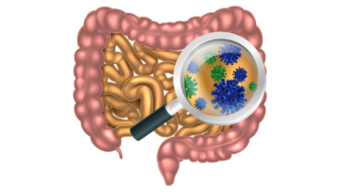 右半结肠癌根治术步骤