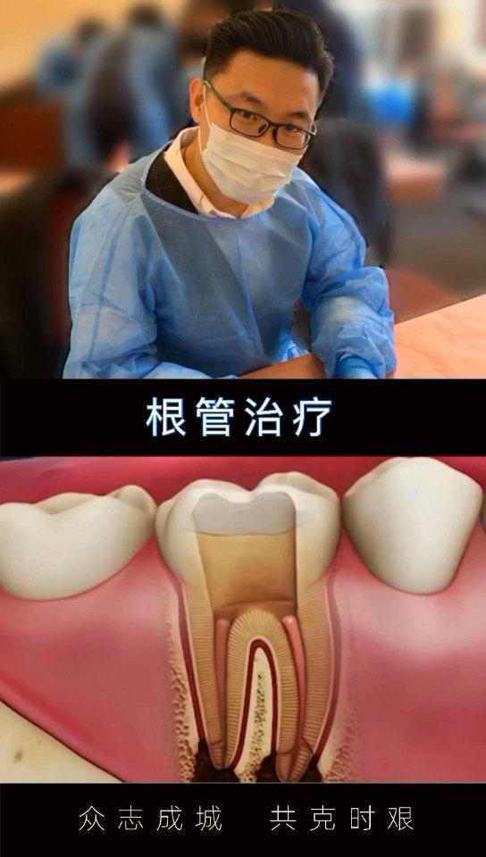 口腔科普:根管治疗