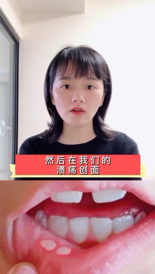#口腔溃疡#口腔溃疡的用药方式,你的药用对了吗?
